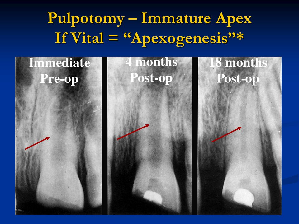 Apexogenesis vs Apexification Dealing with the immature root Apexogenesis (Vital Pulp) best to treat w pulpotomy.