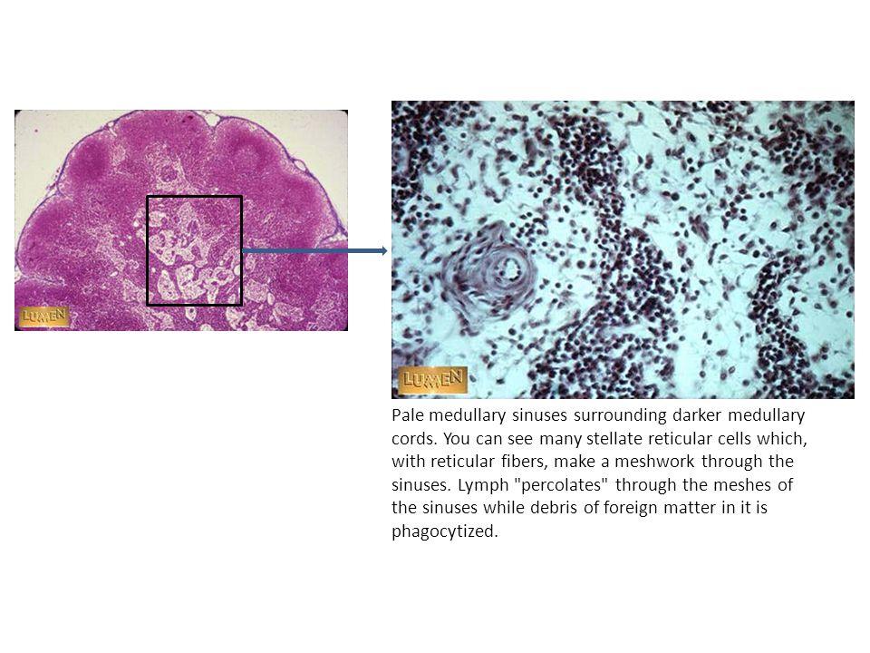 Pale medullary sinuses surrounding darker medullary cords.