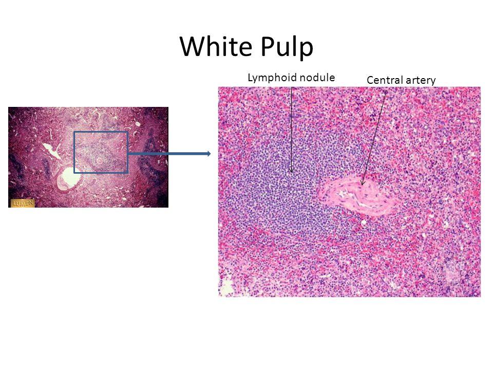White Pulp Central artery Lymphoid nodule