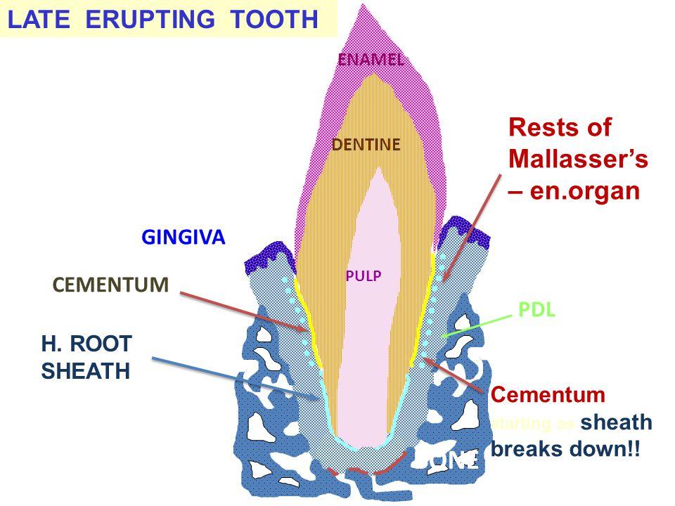 H. ROOT SHEATH LATE ERUPTING TOOTH DENTINE ENAMEL BONE GINGIVA CEMENTUM PDL PULP Rests of Mallasser's – en.organ remnants of Root sheath Cementum star