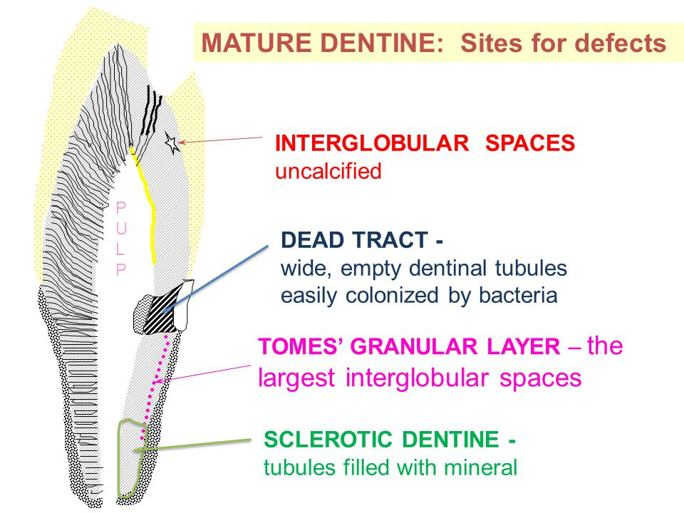 PULPPULP MATURE DENTINE: Sites for defects INTERGLOBULAR SPACES uncalcified DEAD TRACT - wide, empty dentinal tubules easily colonized by bacteria TOMES' GRANULAR LAYER – the largest interglobular spaces SCLEROTIC DENTINE - tubules filled with mineral
