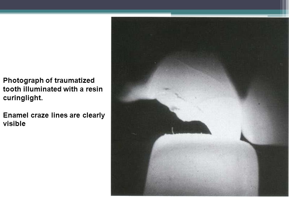 Photograph of traumatized tooth illuminated with a resin curinglight. Enamel craze lines are clearly visible