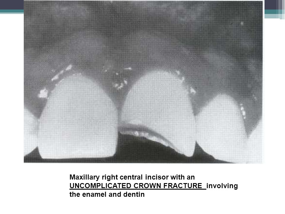 Maxillary right central incisor with an UNCOMPLICATED CROWN FRACTURE involving the enamel and dentin