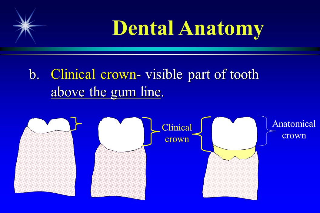 b.Clinical crown- visible part of tooth above the gum line. b.Clinical crown- visible part of tooth above the gum line. Anatomical crown Clinical crow