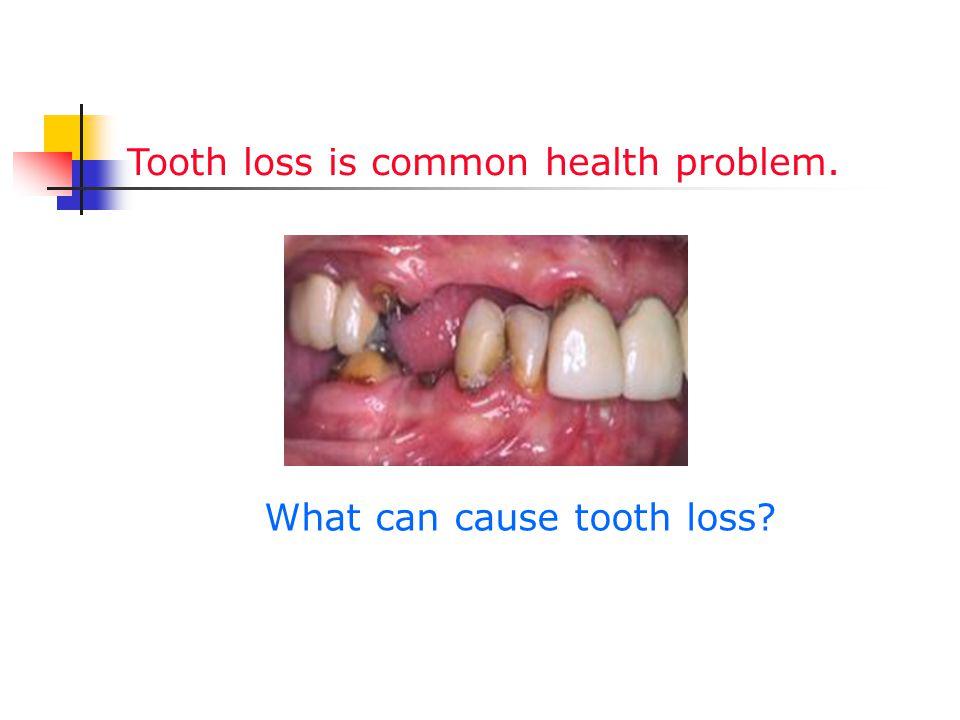 Reasons of tooth loss Microbial tooth loss (dental caries, periodontitis) Non microbial tooth loss (trauma, congenital loss)