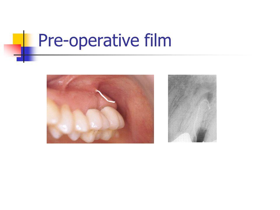 Pre-operative film