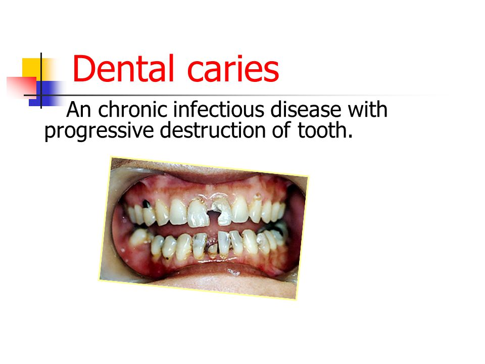 Irreversible Pulpitis Reversible pulpitis are left untreated.
