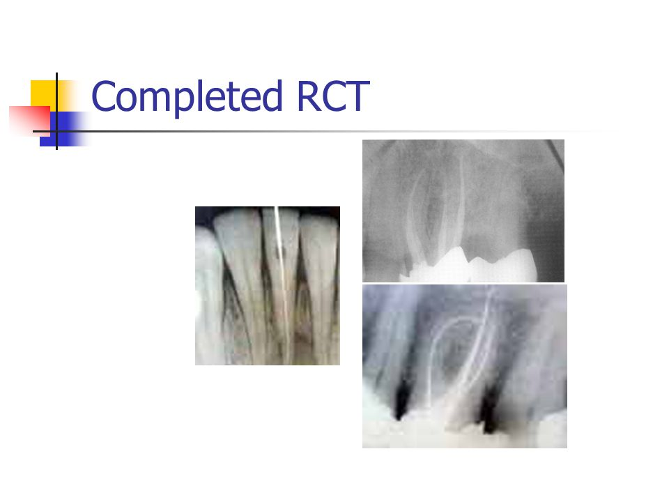 Completed RCT