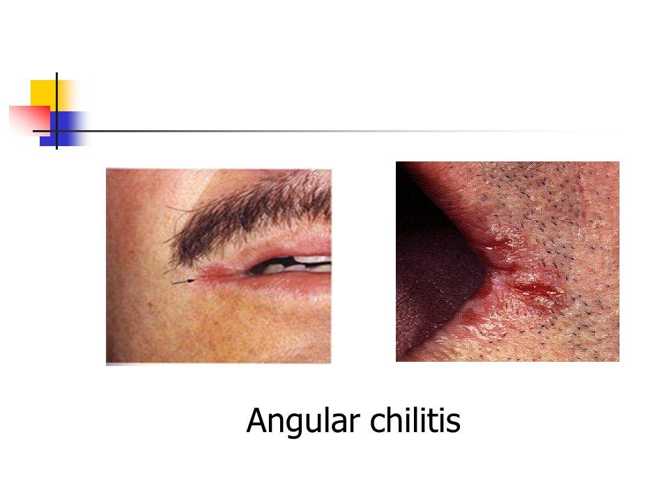 Angular chilitis