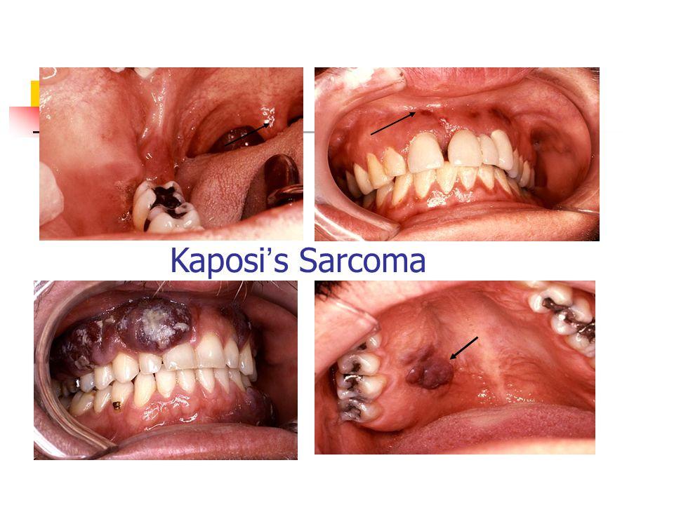 Kaposi ' s Sarcoma