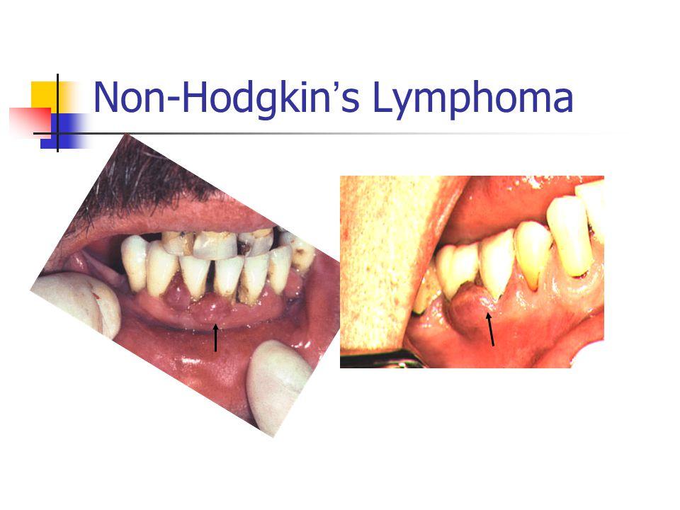 Non-Hodgkin ' s Lymphoma
