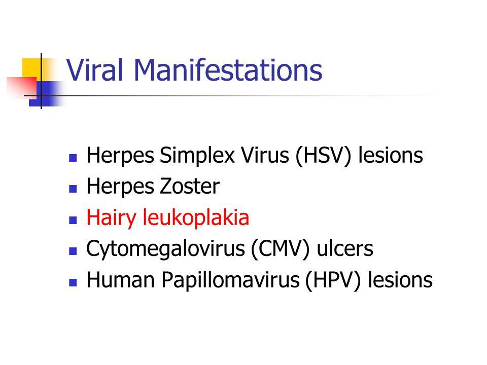 Viral Manifestations Herpes Simplex Virus (HSV) lesions Herpes Zoster Hairy leukoplakia Cytomegalovirus (CMV) ulcers Human Papillomavirus (HPV) lesions