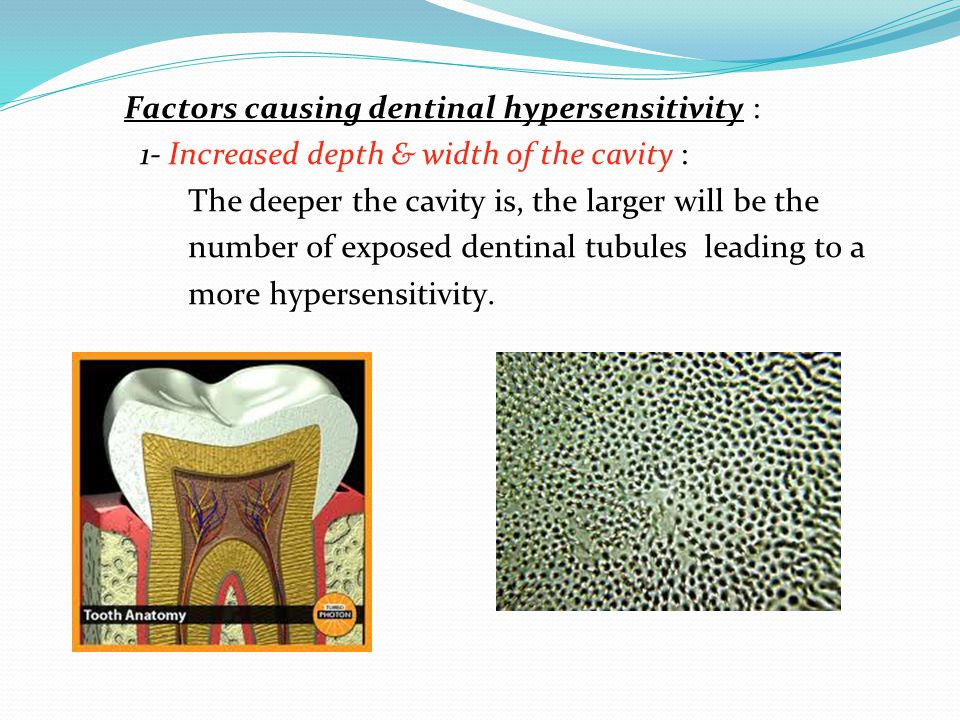 Factors causing dentinal hypersensitivity : 1- Increased depth & width of the cavity : The deeper the cavity is, the larger will be the number of exposed dentinal tubules leading to a more hypersensitivity.