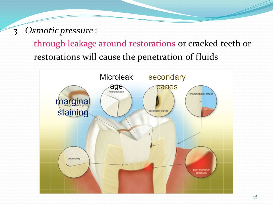 16 3- Osmotic pressure : through leakage around restorations or cracked teeth or restorations will cause the penetration of fluids marginal staining Microleak age secondary caries