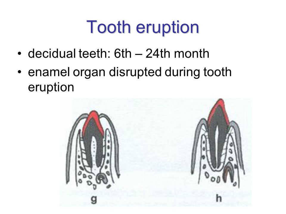 Tooth eruption decidual teeth: 6th – 24th month enamel organ disrupted during tooth eruption