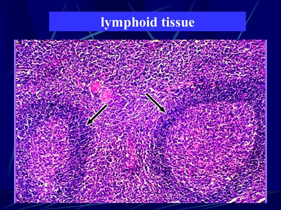 lymphoid tissue