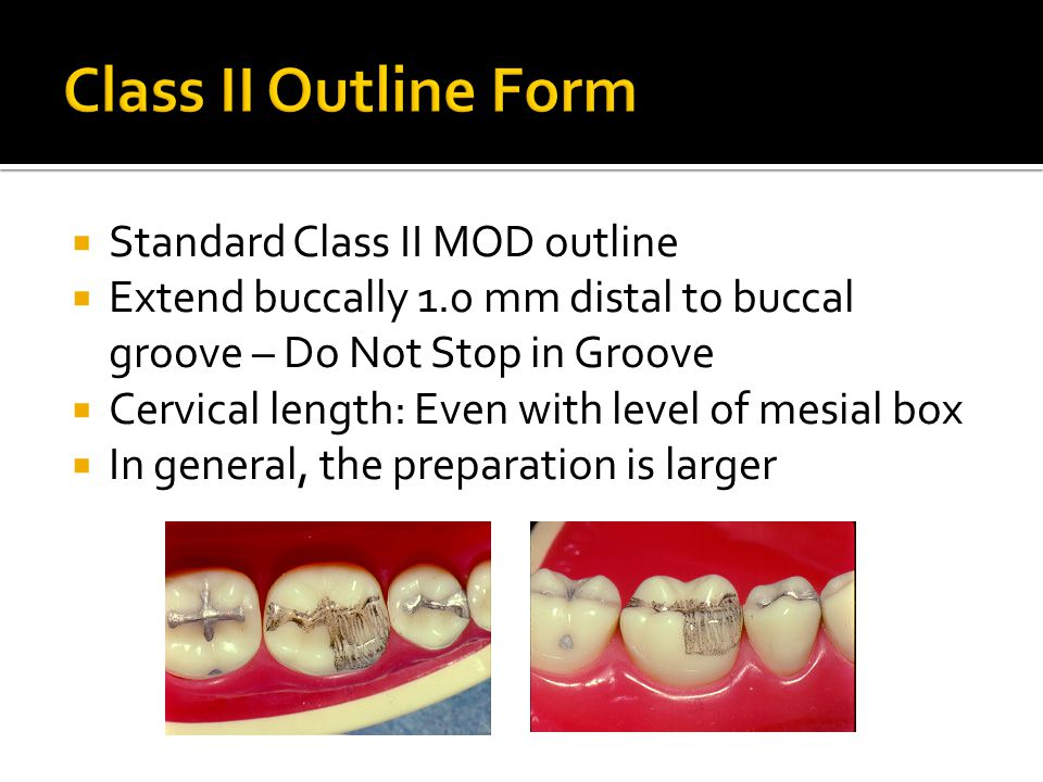  Standard Class II MOD outline  Extend buccally 1.0 mm distal to buccal groove – Do Not Stop in Groove  Cervical length: Even with level of mesial