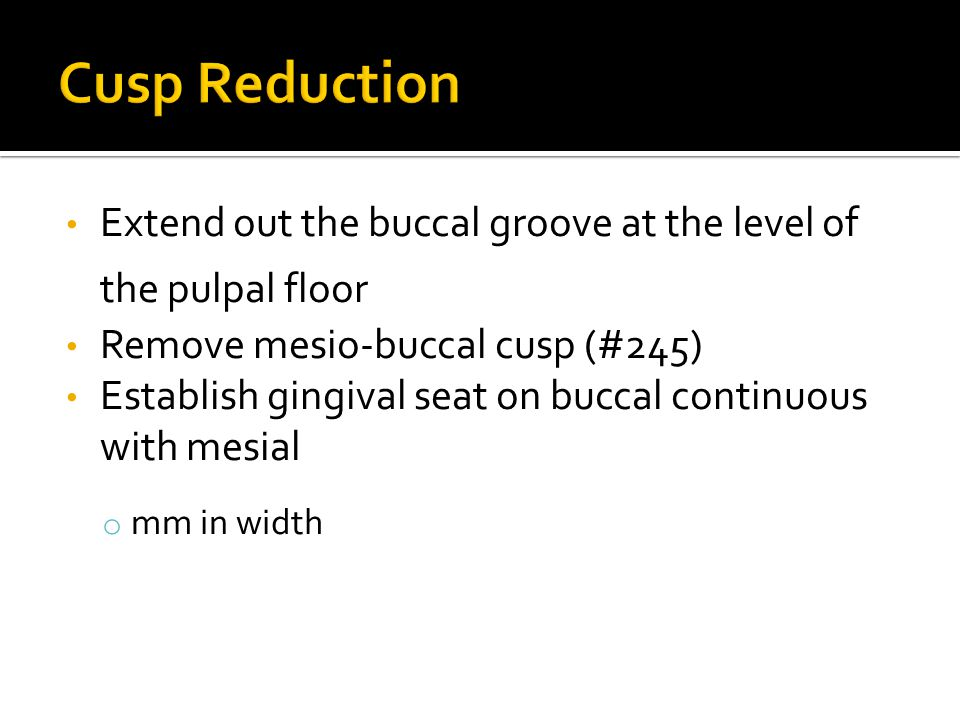 Extend out the buccal groove at the level of the pulpal floor Remove mesio-buccal cusp (#245) Establish gingival seat on buccal continuous with mesial