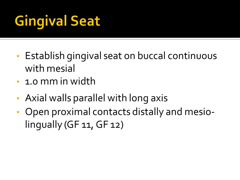 Establish gingival seat on buccal continuous with mesial 1.0 mm in width Axial walls parallel with long axis Open proximal contacts distally and mesio