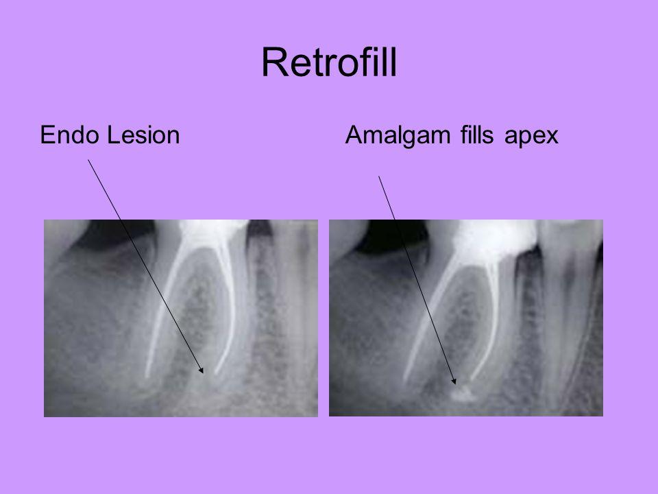 Retrofill Endo Lesion Amalgam fills apex