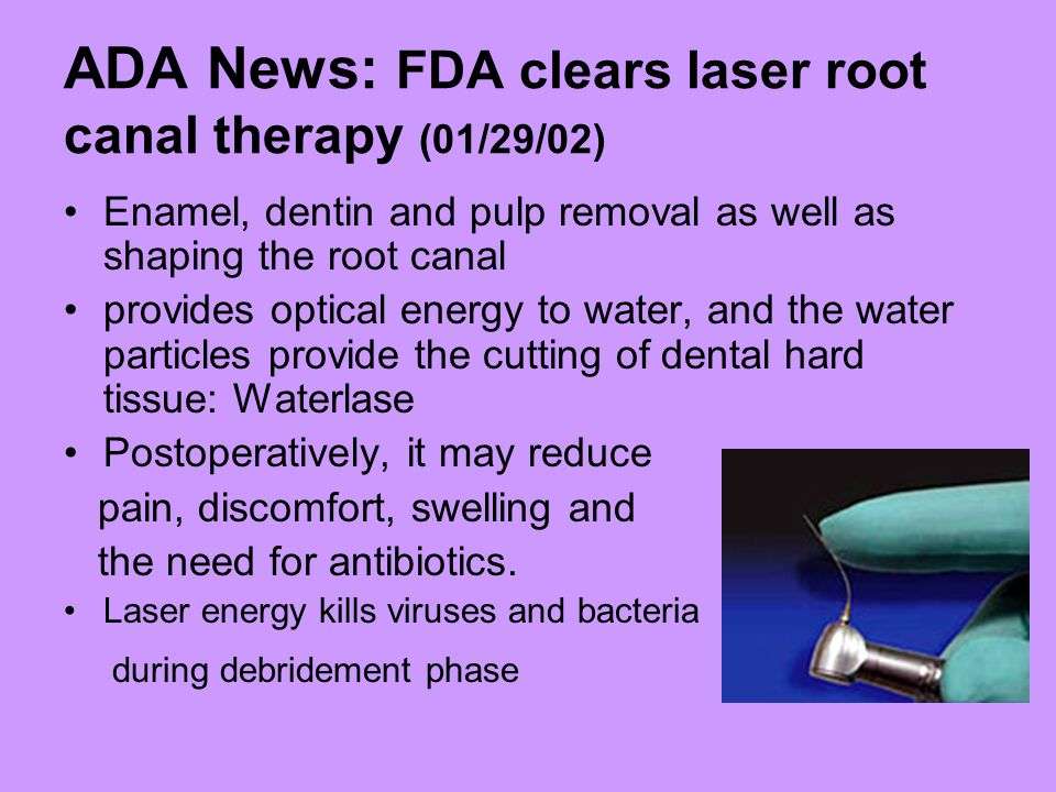 ADA News: FDA clears laser root canal therapy (01/29/02) Enamel, dentin and pulp removal as well as shaping the root canal provides optical energy to