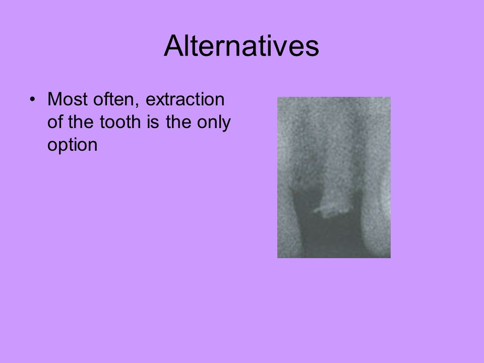 Alternatives Most often, extraction of the tooth is the only option