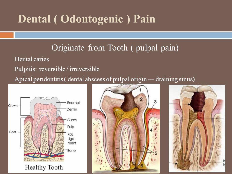 Dental ( Odontogenic ) Pain Originate from Tooth ( pulpal pain) Dental caries Pulpitis: reversible / irreversible Apical peridontitis ( dental abscess of pulpal origin --- draining sinus)