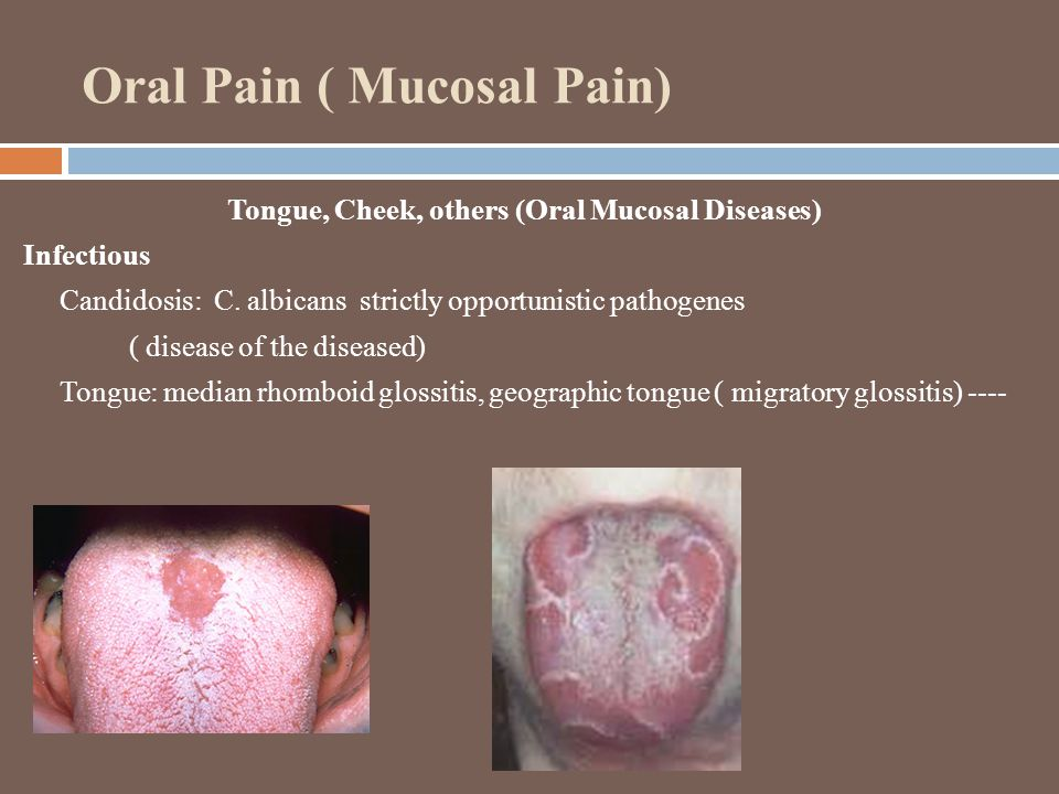 Oral Pain ( Mucosal Pain) Tongue, Cheek, others (Oral Mucosal Diseases) Infectious Candidosis: C.