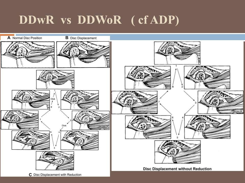 DDwR vs DDWoR ( cf ADP)