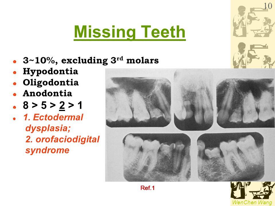 WenChen Wang Missing Teeth  3~10%, excluding 3 rd molars  Hypodontia  Oligodontia  Anodontia  8 > 5 > 2 > 1  1. Ectodermal dysplasia; 2. orofaci