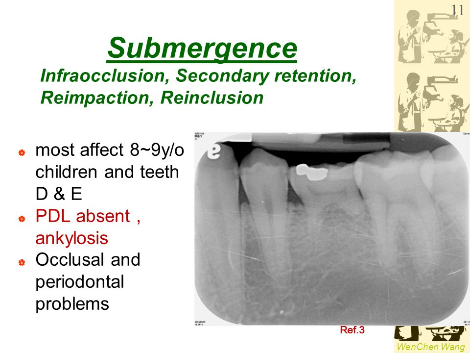 WenChen Wang Submergence  most affect 8~9y/o children and teeth D & E  PDL absent, ankylosis  Occlusal and periodontal problems 11 Ref.3 Infraocclu