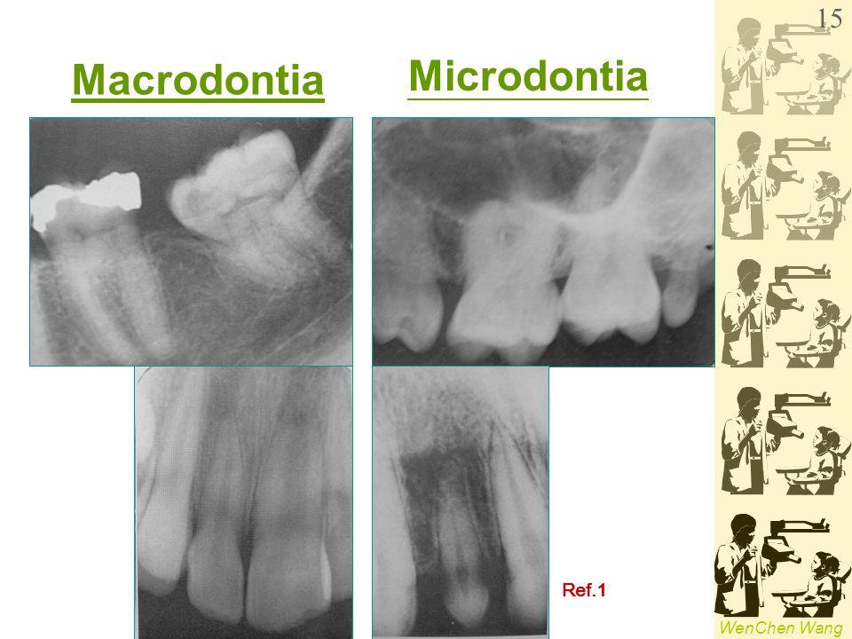 WenChen Wang Macrodontia Microdontia Ref.1 15