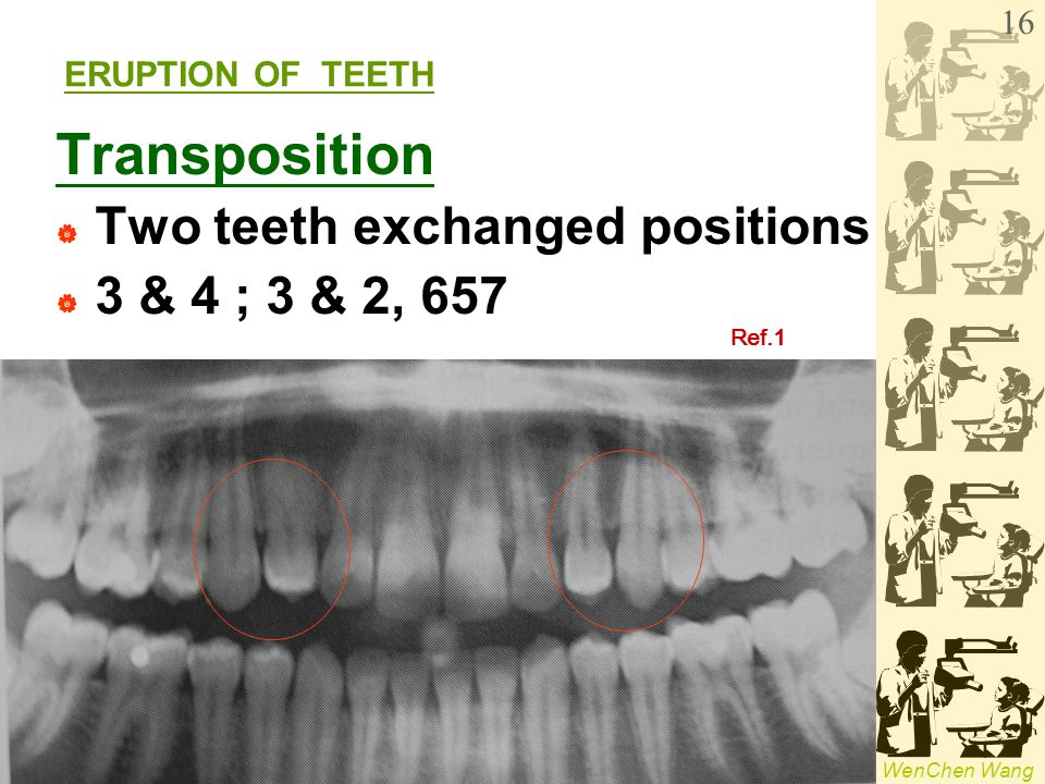 WenChen Wang ERUPTION OF TEETH Transposition  Two teeth exchanged positions  3 & 4 ; 3 & 2, 657 Ref.1 16