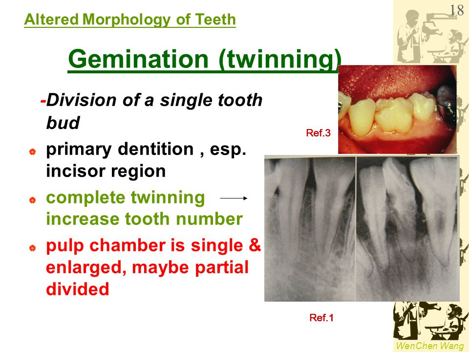 WenChen Wang Gemination (twinning) -Division of a single tooth bud  primary dentition, esp. incisor region  complete twinning increase tooth number