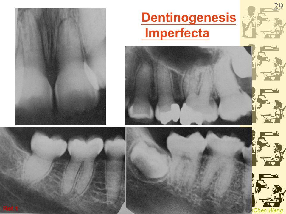 WenChen Wang Dentinogenesis Imperfecta Ref.1 29