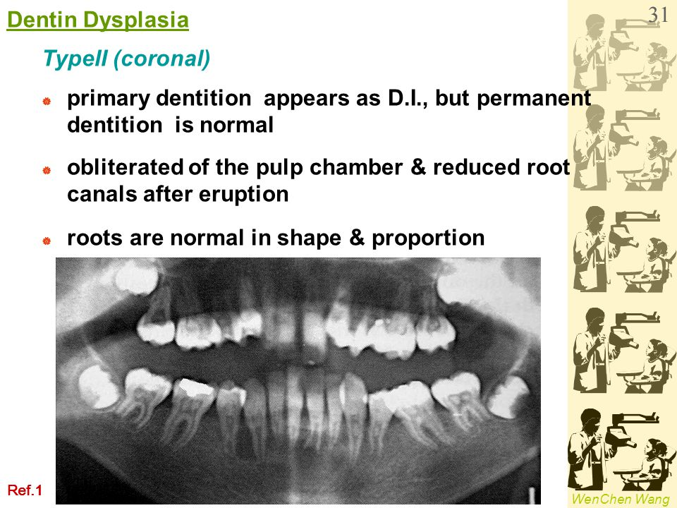 WenChen Wang TypeII (coronal)  primary dentition appears as D.I., but permanent dentition is normal  obliterated of the pulp chamber & reduced root