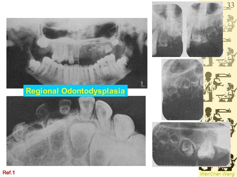 WenChen Wang Regional Odontodysplasia Ref.1 33