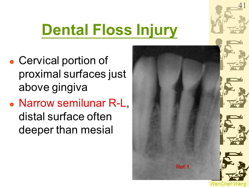 WenChen Wang Dental Floss Injury  Cervical portion of proximal surfaces just above gingiva  Narrow semilunar R-L, distal surface often deeper than m
