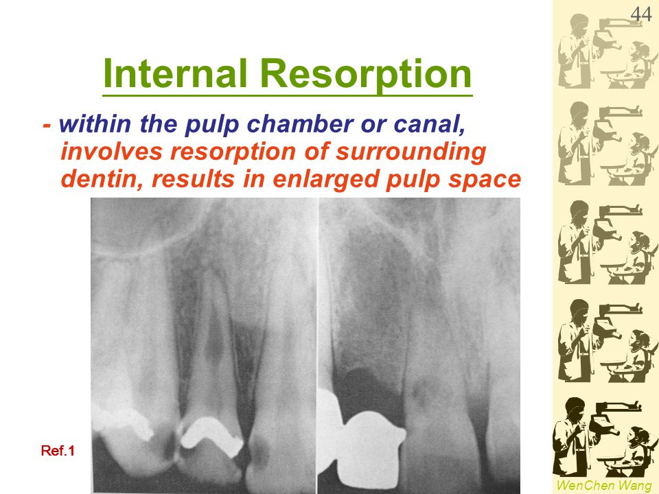 WenChen Wang Internal Resorption - within the pulp chamber or canal, involves resorption of surrounding dentin, results in enlarged pulp space 44 Ref.