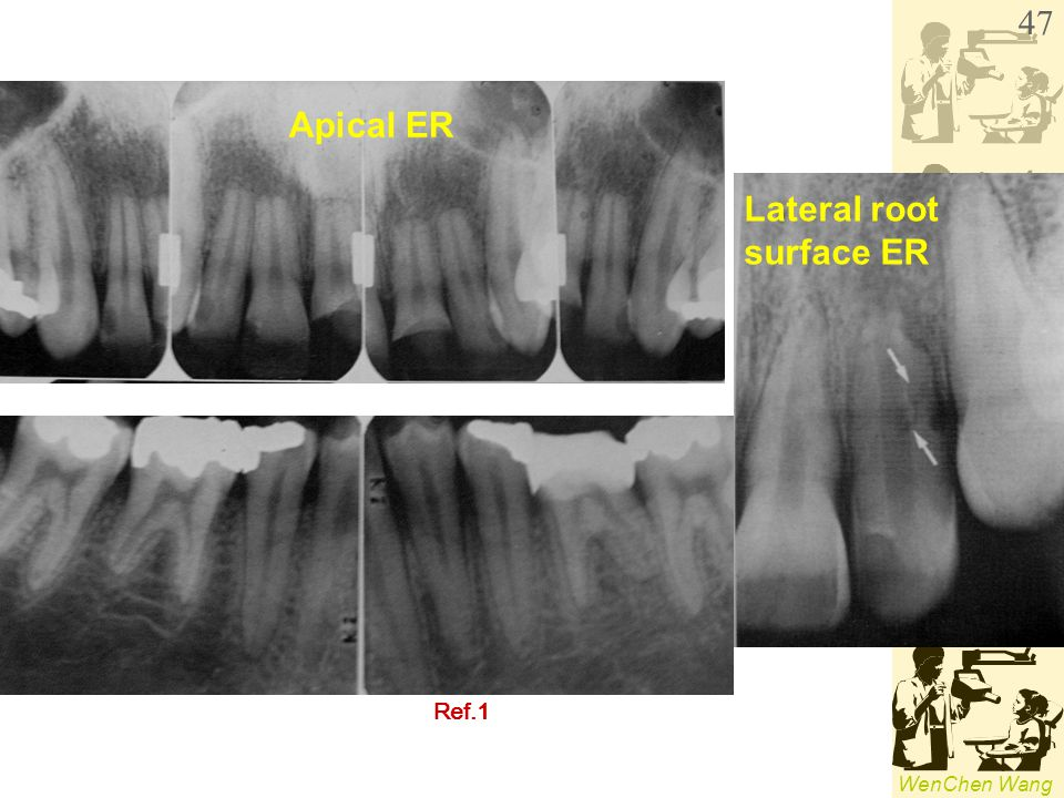 WenChen Wang Apical ER Lateral root surface ER Ref.1 47