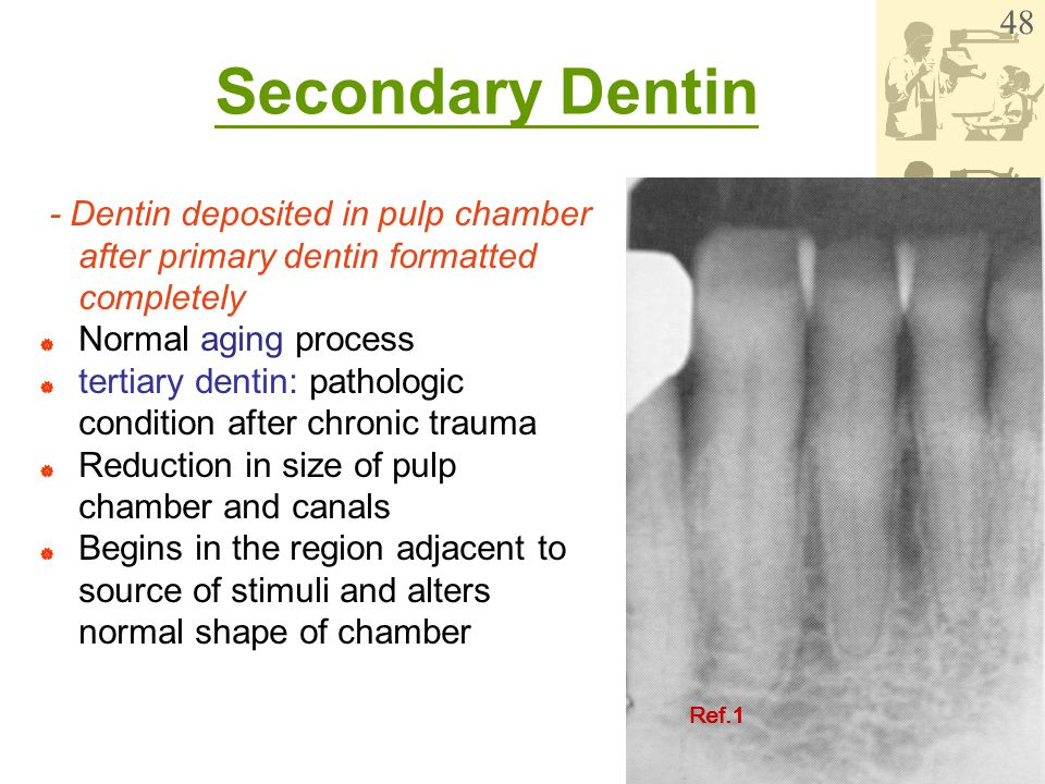 WenChen Wang Secondary Dentin - Dentin deposited in pulp chamber after primary dentin formatted completely  Normal aging process  tertiary dentin: p