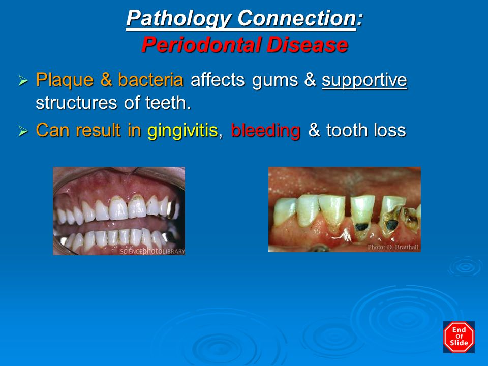 Pathology Connection: Periodontal Disease  Plaque & bacteria affects gums & supportive structures of teeth.  Can result in gingivitis, bleeding & to