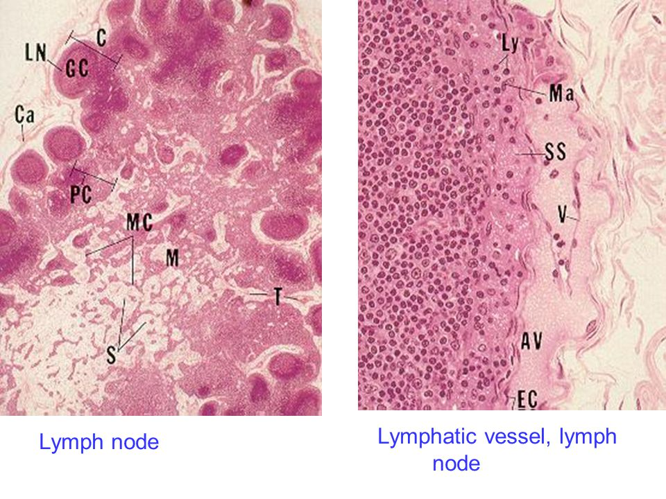 Lymph node Lymphatic vessel, lymph node