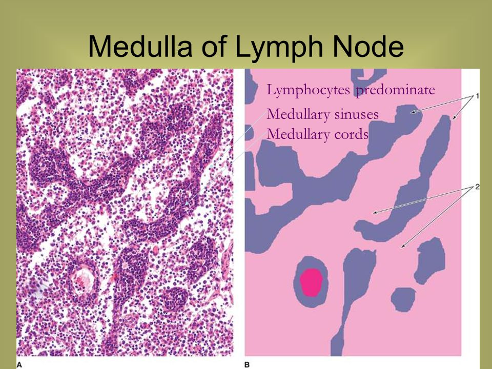 Medulla of Lymph Node Lymphocytes predominate Medullary sinuses Medullary cords