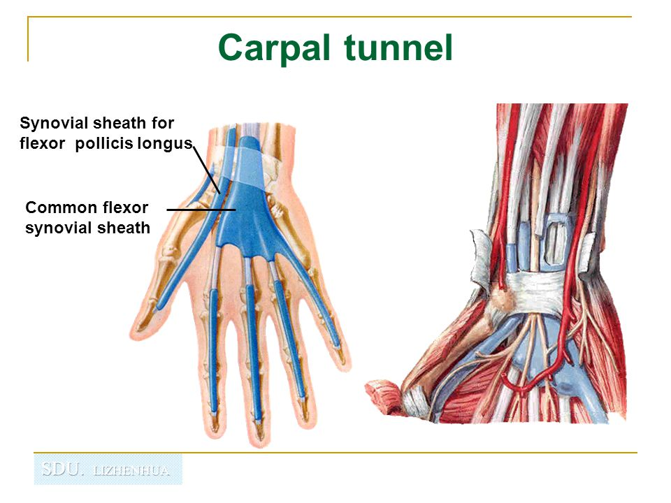 Carpal tunnel Common flexor synovial sheath Synovial sheath for flexor pollicis longus