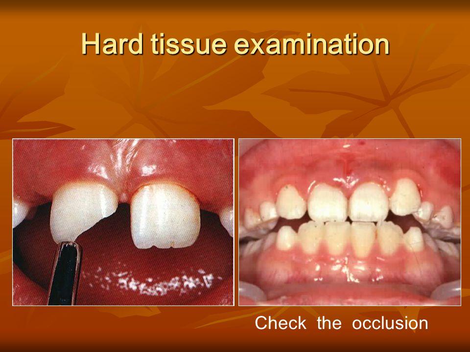 Hard tissue examination Clean the crown Clean the crown Infraction line Infraction line Dentin or pulp exposure Dentin or pulp exposure color color Cr