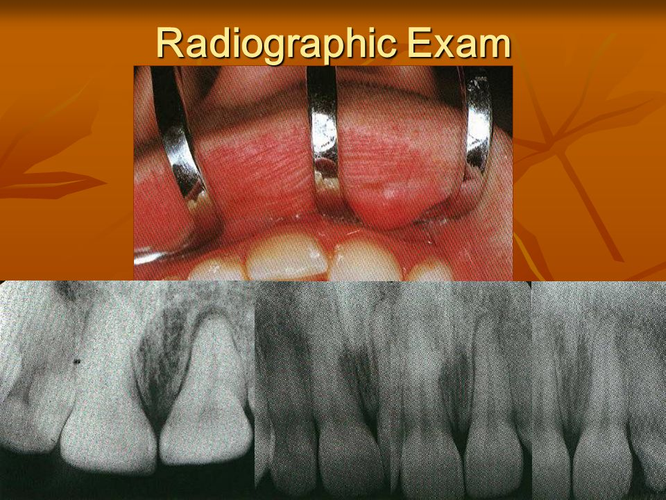Radiographic Exam 구내 방사선 구내 방사선 Dislocation Dislocation Extrusion or Lateral luxation Extrusion or Lateral luxation Widening of the periodontal space