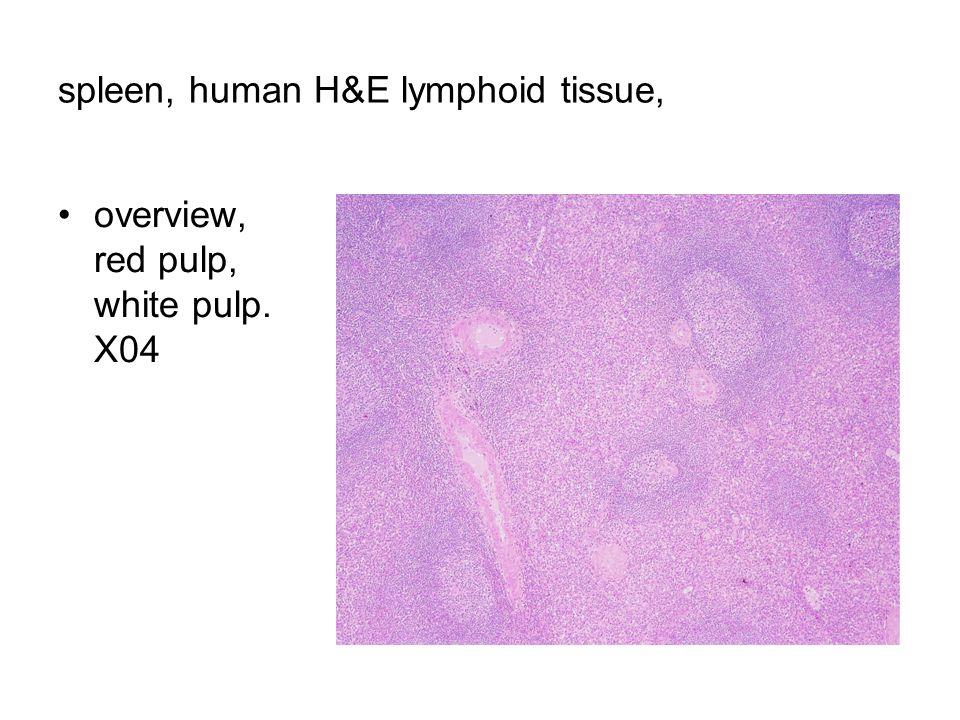 spleen, human H&E lymphoid tissue, overview, red pulp, white pulp. X04