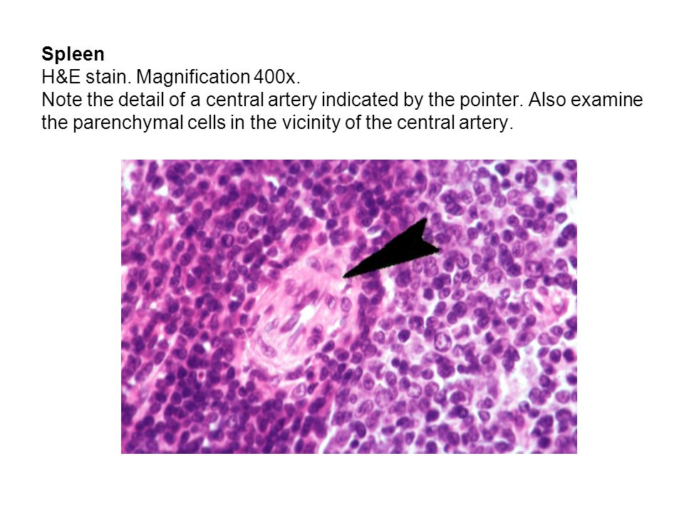 Spleen H&E stain. Magnification 400x. Note the detail of a central artery indicated by the pointer. Also examine the parenchymal cells in the vicinity