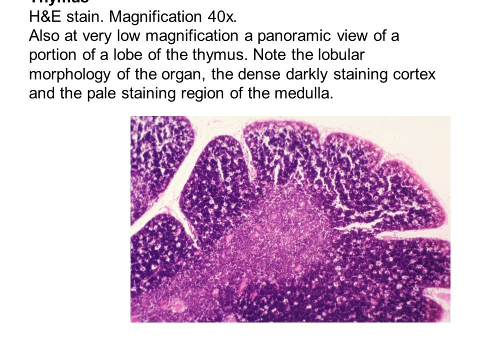 Thymus H&E stain. Magnification 40x. Also at very low magnification a panoramic view of a portion of a lobe of the thymus. Note the lobular morphology